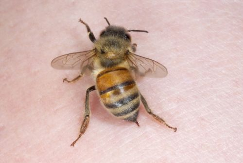 Woman dies after undergoing 'bee acupuncture' treatment touted by celebs