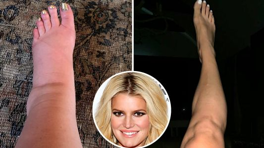 Swollen No More! Jessica Simpson Flaunts Her Toned Ankles 2 Months After Giving Birth to Daughter Birdie