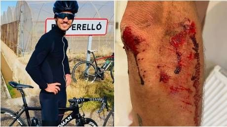 'Becoming common occurrence in London': Brit cycling star left bloodied after being robbed of $14K bike by machete-wielding thugs
