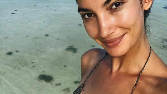 Lily Aldridge Is Pregnant With Her Second Child