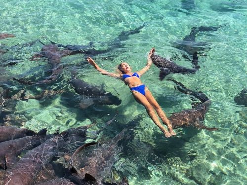 A 19-year-old model was bitten by a shark while she was on vacation in the Bahamas - and now she says she's facing sexist backlash
