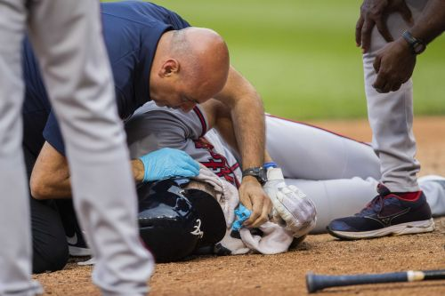 Atlanta Braves player has multiple facial fractures after taking 91 mph pitch to the face