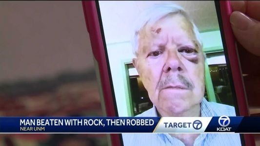 79 year old man beaten with rock, robbed near UNM