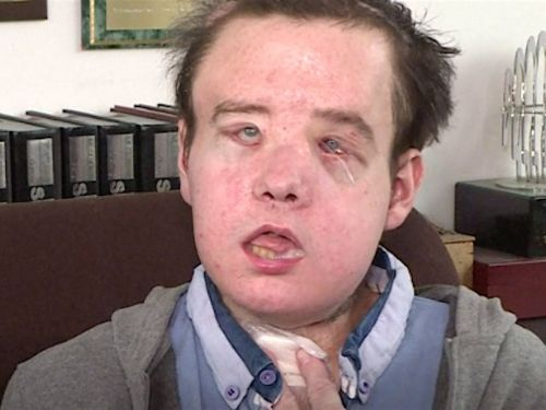 A French man just received a second face transplant - and now he's been dubbed 'the man with three faces'
