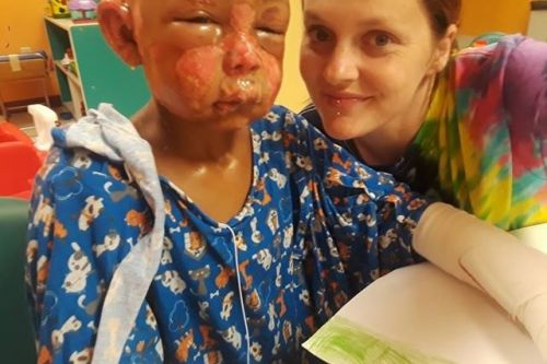 'He loves to love;' Mother of Missouri boy set on fire by another child speaks out