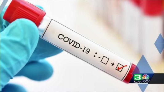 Monterey County reports 35 new COVID-19 cases in 1 day