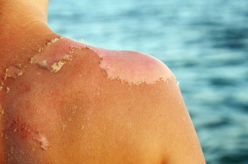 What's a sunburn and how do you avoid It?