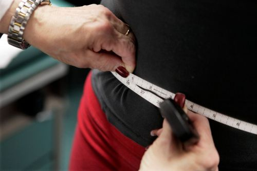 Doctors are bracing for the coronavirus pandemic to meet America's obesity epidemic. Some experts worry the stigma could be dangerous by itself